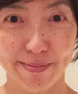 美容鍼140922-1拡大