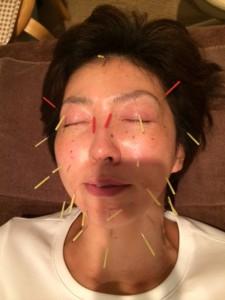 美容鍼140922-3