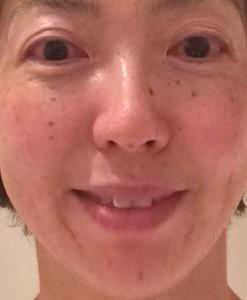 美容鍼140922-5拡大