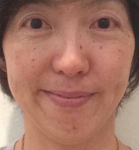 美容鍼トリミング141006-1