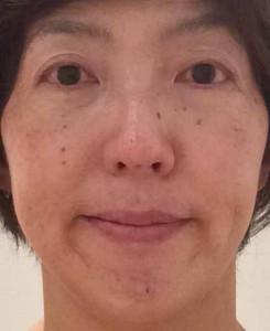 美容鍼140929顔前2